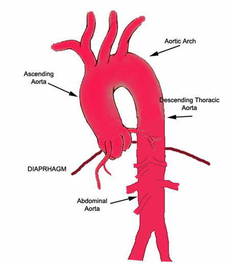 VirtualMedStudent.com || Aortic Dissection