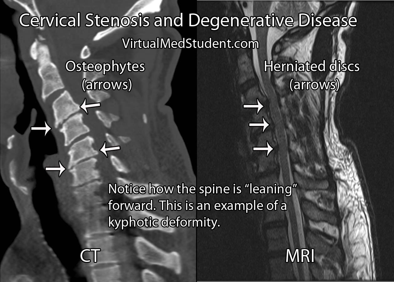 Virtualmedstudent Cervical Myelopathy And Stenosis