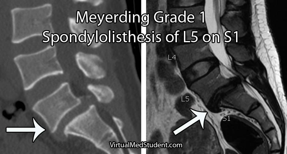 grade 1 spinal listhesis Spondylolisthesis grades doctors use the meyerding grading system to classify the degree of vertebral slippage this system is easy to understand slips are graded on the basis of the percentage that one vertebral body has slipped forward over the vertebral body below grade i: 1-24% grade ii: 25-49%.