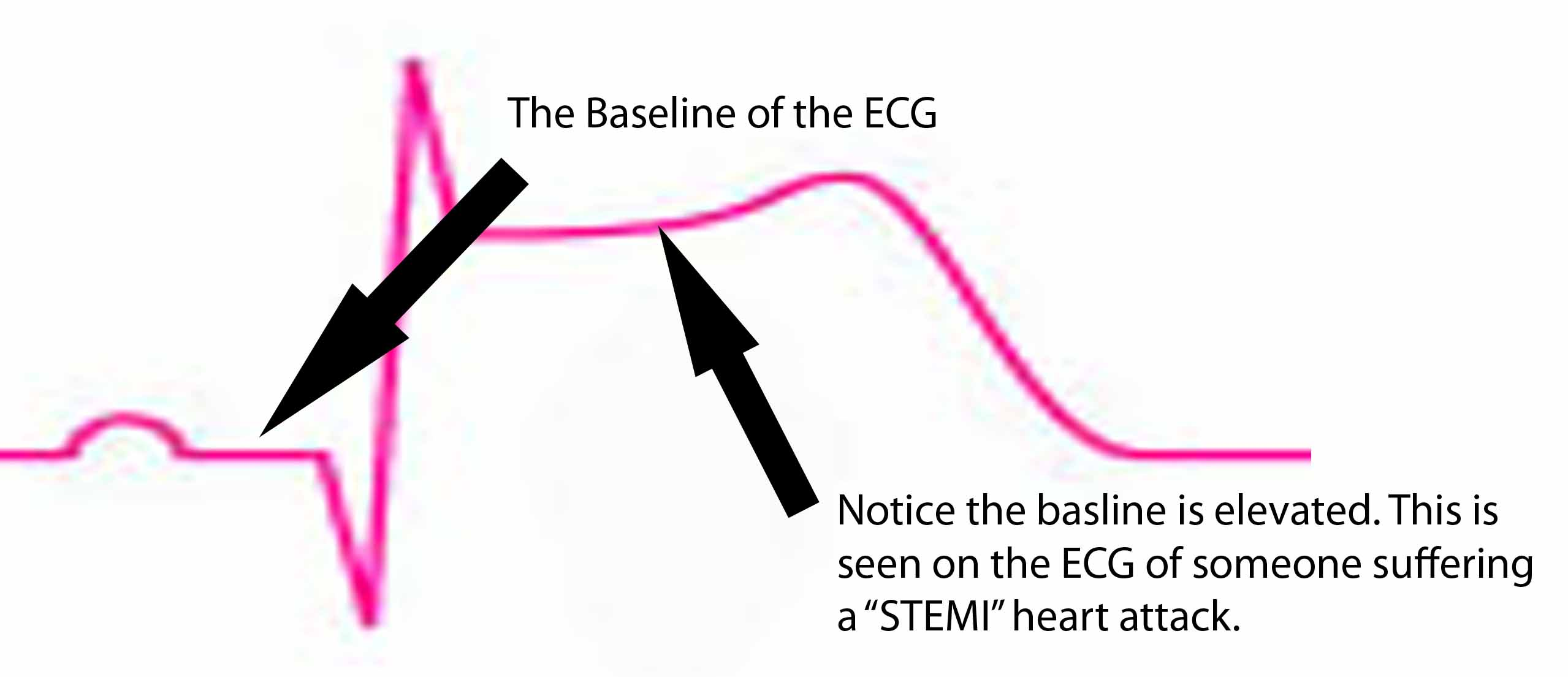 Diagnostic studies can confirm NSTEMI or STEMI. An electrocardiogram ...